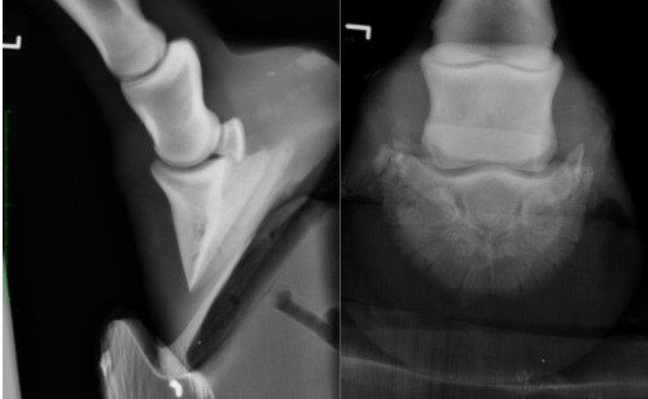 Case A case of P3 fracture in a horse